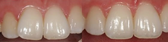 before-after-clearsmile-aligners