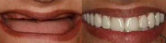 before-after-dentures