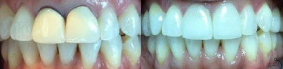 before-after-service-dental-crows