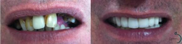 before-after-service-dental-implants