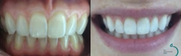 before-after-whitening