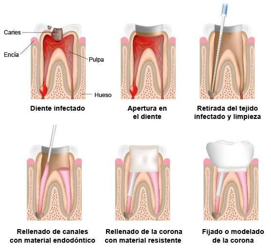 endodoncia-es