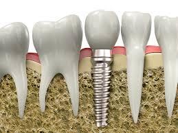 dental implants peru